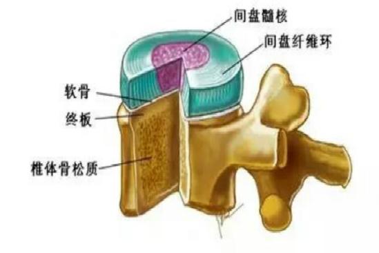 腰部为什么会容易导致腰椎间盘突出