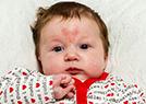情人节宝宝长心胎记