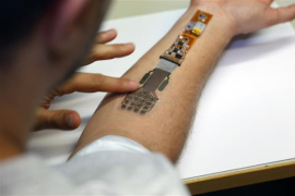 3D打印绷带可向医生无线发送伤口情况
