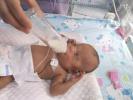 保定诞生5个月早产儿!出生时仅550g,手掌一般大小