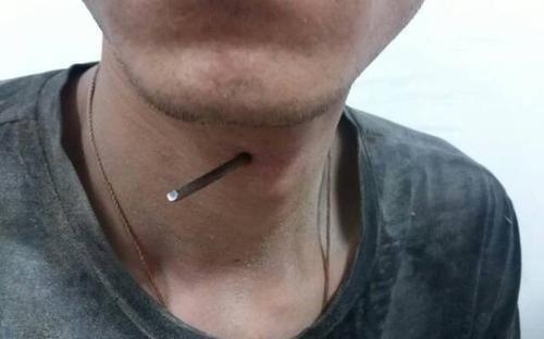 男子被7厘米长钉插入喉部 无法说话呼吸困难