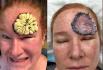 皮肤癌到底有可怕?画面触目惊心