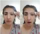 搞笑!女子误用文眉药剂导致眉毛不翼而飞