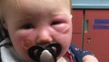 女婴严重毁容 都是防晒霜惹的祸